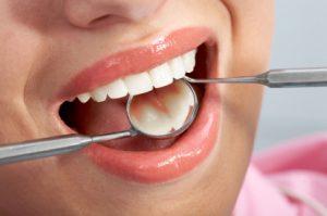 Importance of General Dentistry in Phoenix, AZ